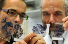 اكتشاف وسيلة مضادة لموت الدماغ