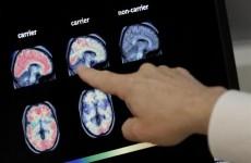 """باحثون يعثرون على """"مفاجأة"""" في دماغي مريضين بالزهايمر!"""