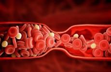 كشف سبب تشكّل جلطات الدم لدى المصابين بكورونا