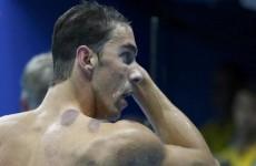"""""""حجامة"""" السباحين تلفت الانظار في أولمبياد طوكيو"""