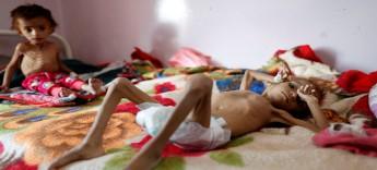 """""""وجه الحرب القبيح""""... رحلة طفلة يمنية تحت """"أقبية الجوع"""""""
