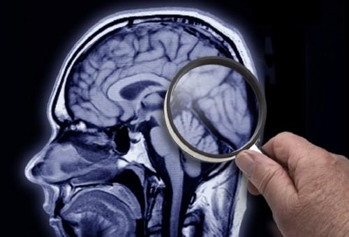 في اكتشاف غير متوقع.. العلماء يجدون النحاس والحديد في أدمغة مرضى ألزهايمر المتوفين!